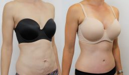 Abdominoplasty Patient 12