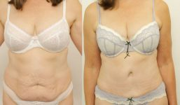 Abdominoplasty Patient 4