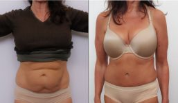 Abdominoplasty Patient 3