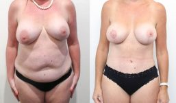 Breast Lift with Implants 375cc