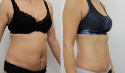 Abdominoplasty Patient 16