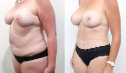 Abdominoplasty Patient 15