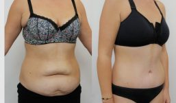 Abdominoplasty Patient 14