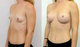 Breast Augmentation 295cc Athletic Look