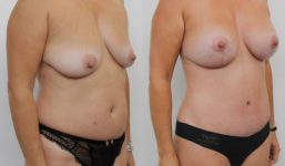 MP TT AM Liposuction Motiva