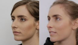 Dr Alex Phoon Rhinoplasty