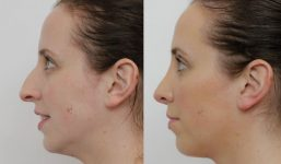 Dr Alex Phoon Rhinoplasty surgery before and after