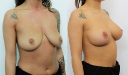 Breast Lift with implants 225cc surgery before and after