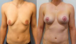 Breast Lift with implants 295cc surgery before and after