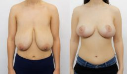 Breast Lift with implants 330cc surgery before and after