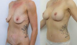 Breast Lift with implants 350cc surgery before and after
