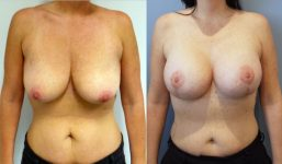 Breast Lift with implants 400cc surgery before and after