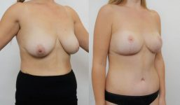 Breast Reduction surgery before and after