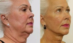 Facelift and Necklift surgery before and after