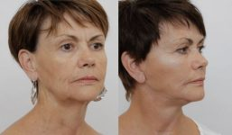 Facelift Patient 3