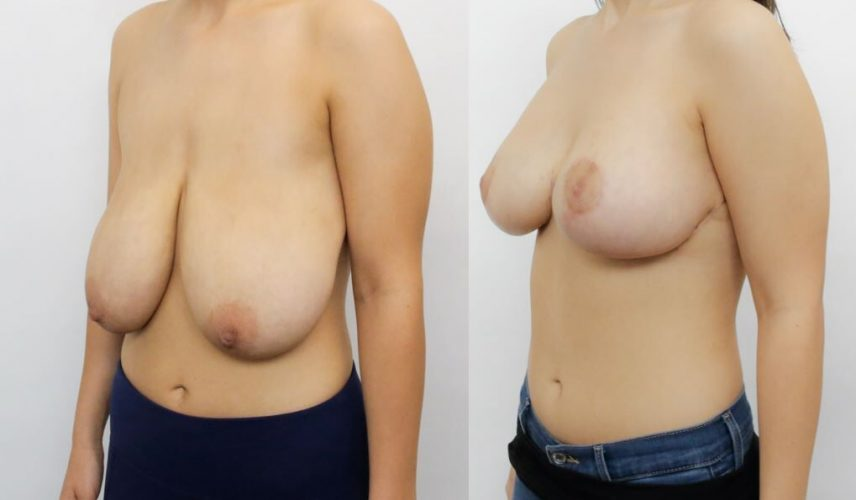 Dr Alex Phoon - Breast Reduction