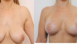 Breast Revision 23 Pre Pregnancy Breast Augmentation 430cc With Lift