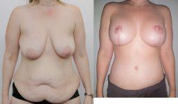 Mummy Makeover AM Belt AM Liposuction MWL AP