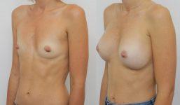 Breast Augmentation 310cc Athletic Look