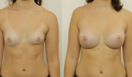Breast Augmentation 440cc Athletic Look