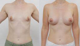 Breast Augmentation 390cc Athletic Look