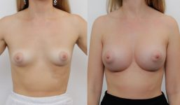 Breast Augmentation 330cc Athletic Look