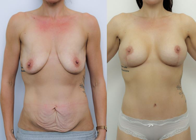 This pic has a girl's MUMMY MAKEOVER SURGERY after and before image