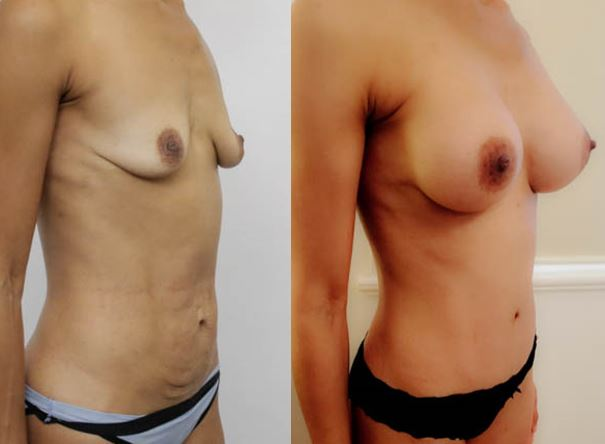 This pic has a girl's MUMMY MAKEOVER SURGERY after and before side view image with enhanced breasts