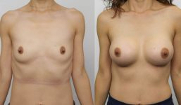 Breast Augmentation 390cc Full Natural Look