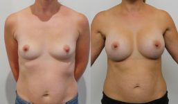 Breast Augmentation 375cc Full Natural Look