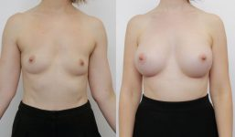 Breast Augmentation 430cc Full Natural Look
