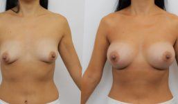 Breast Augmentation 295cc Full Natural Look