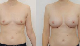 Breast Augmentation 330cc Full Natural Look