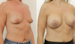 Breast Augmentation 420cc Full Natural Look