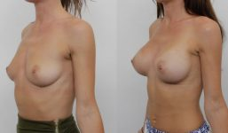 Breast Augmentation 325cc Full Natural Look