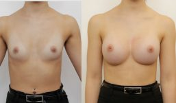 Breast Augmentation 345cc Full Natural Look