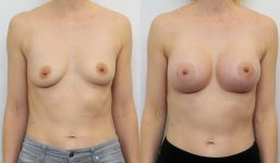 Breast Augmentation 395cc Full Natural Look