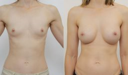 Breast Augmentation 350cc Full Natural Look