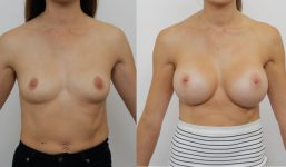 Breast Augmentation 425cc Full Natural Look