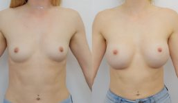 Breast Augmentation 380cc Full Natural Look