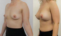 Breast Augmentation 375cc Fuller Look