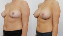 Breast Augmentation 440cc Fuller Look