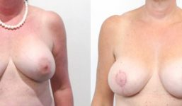Breast Revision JP AM AP