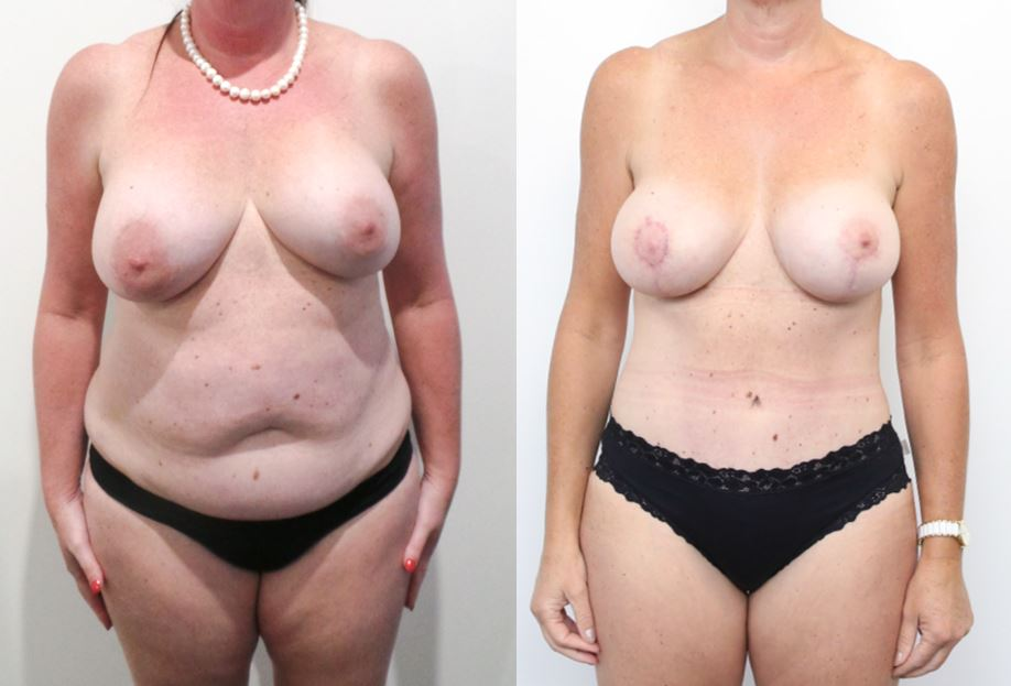 This pic has a girl's MUMMY MAKEOVER SURGERY after and before front view image