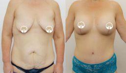 Mummy Makeover AM Belt AM Liposuction Sydney