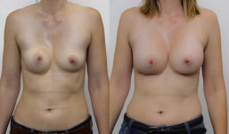 Breast Revision KW Asym PectusEx Breast Augmentation FG L19532 R380333 AP