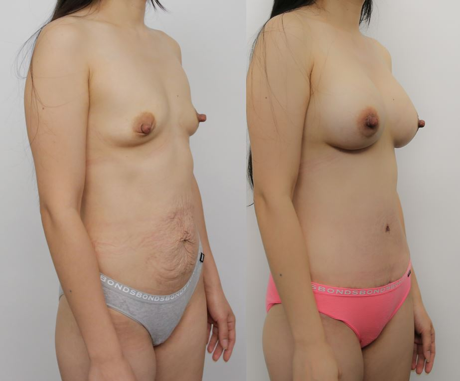 This pic has a girl's MUMMY MAKEOVER SURGERY after and before side view image