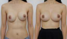 Breast Revision RL Rev Breast Augmentation FGx2 295cc 322 AP