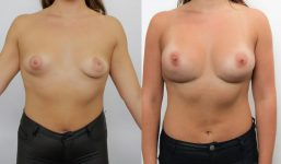 Breast Revision SG Tub Asy Breast Augmentation FG 450cc HP
