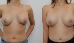 Breast Revision TH Rev Breast Augmentation AP caps
